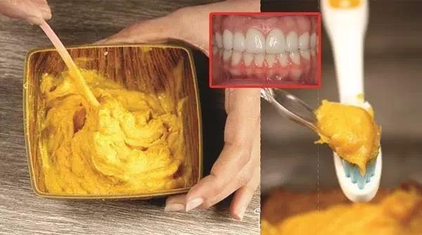 Gardez vos dents et vos gencives en bonne sant avec ce for Autobronzant naturel fait maison