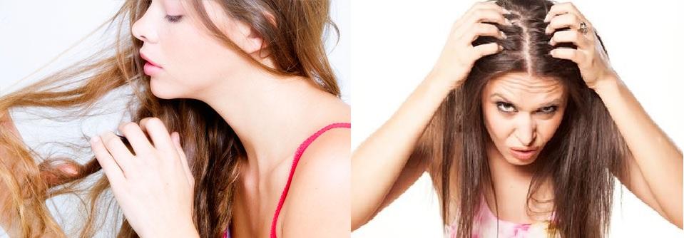 Belita contre la chute des cheveux le shampooing les rappels
