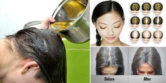Les moyens nationaux du traitement des cheveu et pour la croissance des cheveu